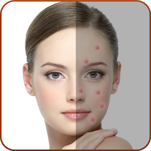 Acne Remover - Pimple Remover icon